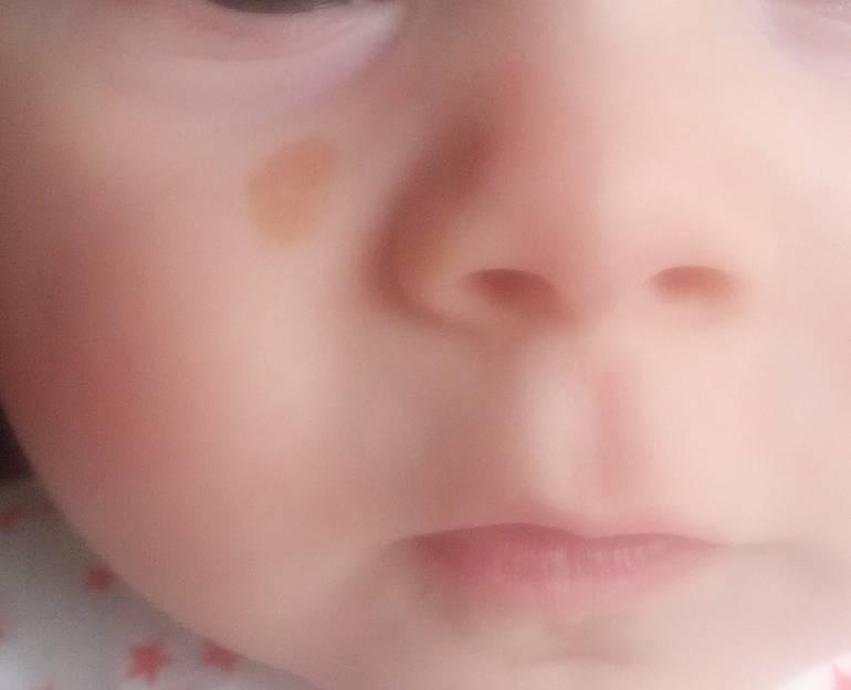 Светло коричневые пятна на теле у ребенка