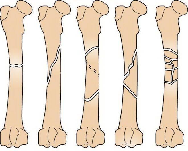 Особенности переломов костей у детей