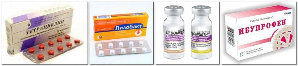 Болит горло при грудном вскармливании: что делать, если оно начало першить, можно ли маме продолжать лактацию, как лечить при гв, а также мнение комаровского