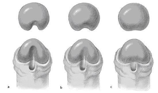 Гипоспадия у мальчиков: головчатая, венечная, стволовая и мошоночная форма