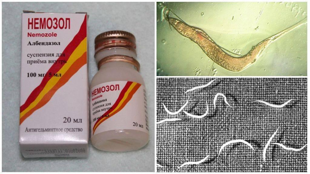 Таблетки от остриц: самые эффективные препараты для лечения остриц