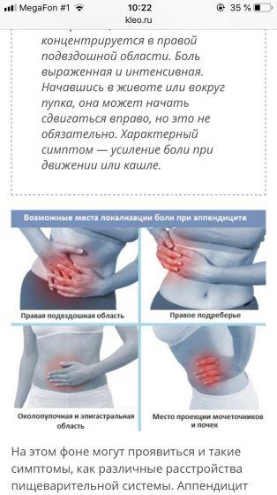Аппендицит при беременности: симптомы и последствия