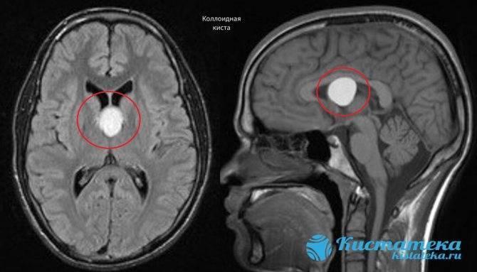 Киста в голове у новорожденного: причины возникновения, способы лечения