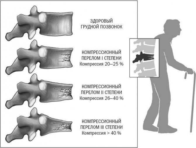 Компрессионный перелом позвоночника у детей: симптомы, лечение и реабилитация после травмы