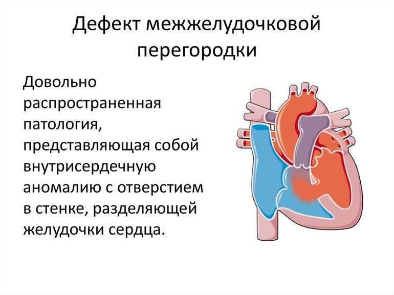 Овальное окно у младенца: возможные проблемы с сердцем, их симптомы и лечение