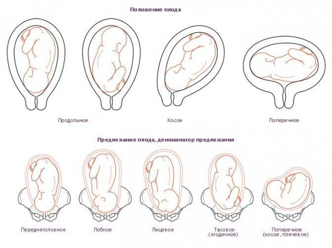 Может ли перевернуться ребенок перед родами - все о беременности