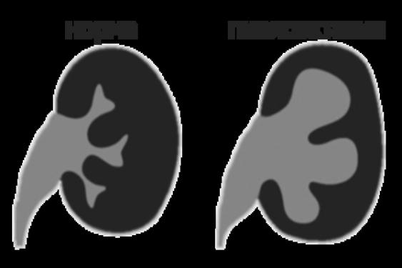 Пиелоэктазия у новорожденного - причины, симптомы, диагностика и лечение