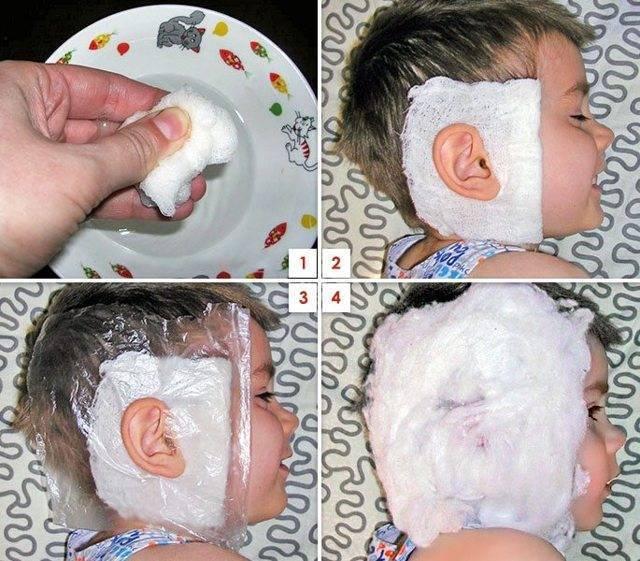 Компресс ребенку на ухо: согревающие, при отите