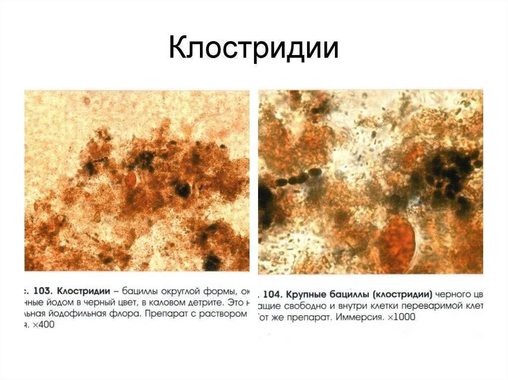 Йодофильная флора в кале у ребенка при копрограмме