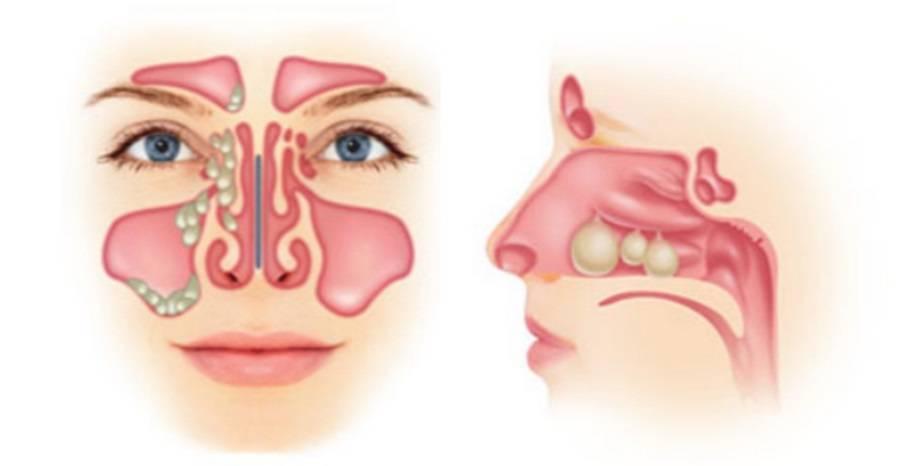 Как выглядят полипы в носу у ребенка: лечение