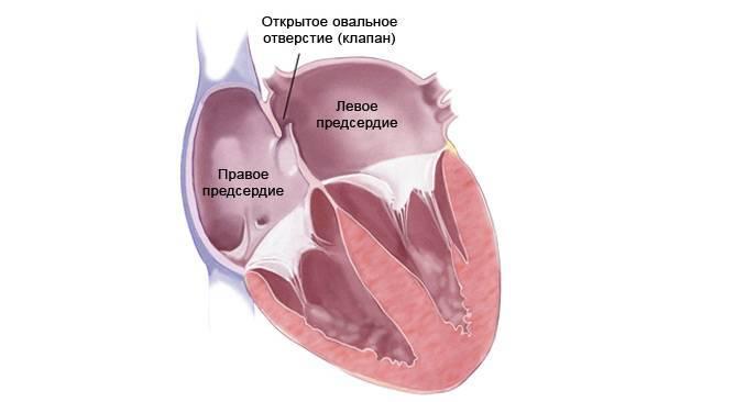 Открытое овальное окно у детей — сердце