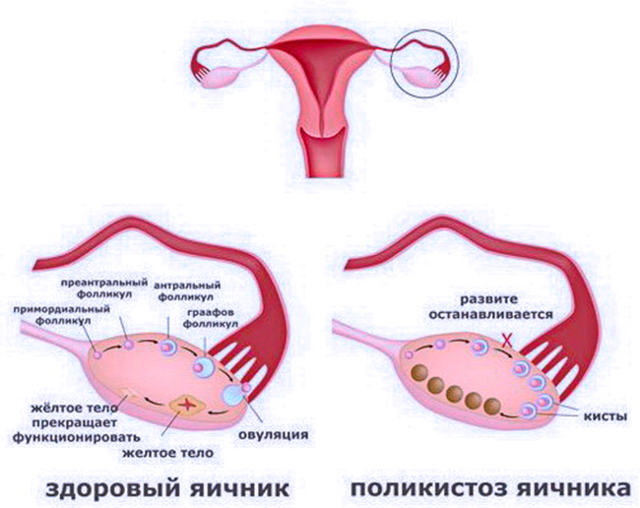 Влияние молочницы на зачатие и беременность