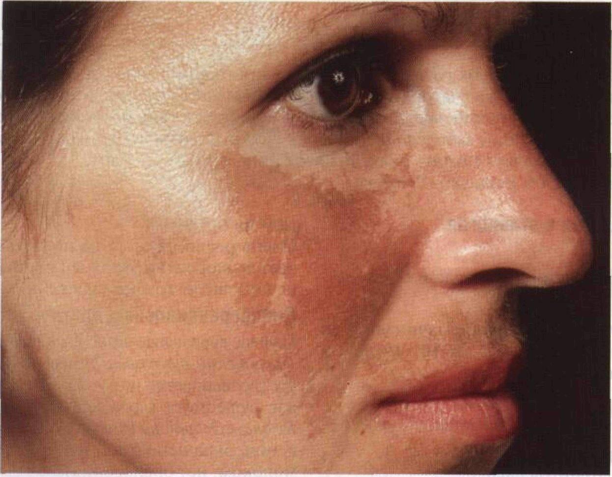 Белое пятно на коже у ребенка: фото на лице, причины и лечение возможных заболеваний | симптомы | vpolozhenii.com