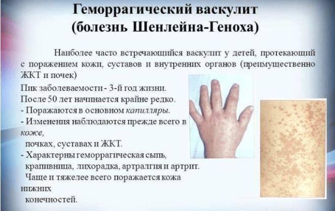 Геморрагический васкулит у детей: причины, симптомы, лечение и диета