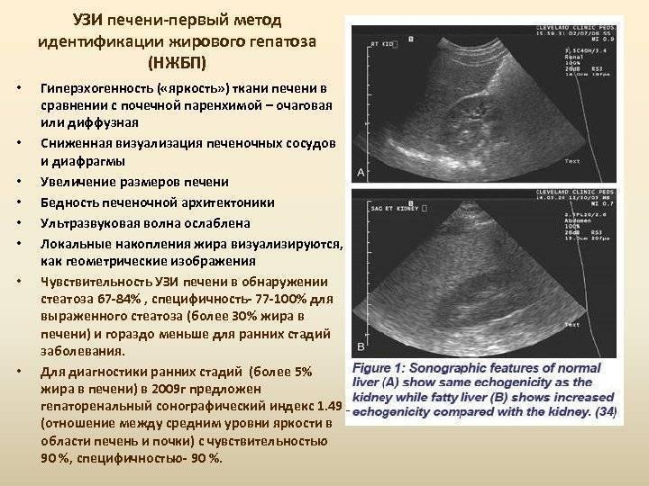 У ребенка увеличена печень: причины гепатомегалии, показатели УЗИ