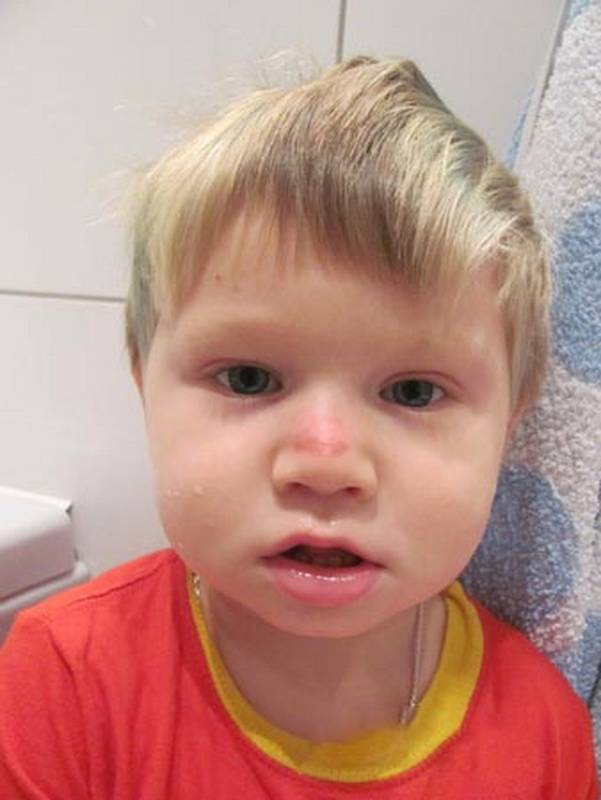 Признаки перелома носа у детей