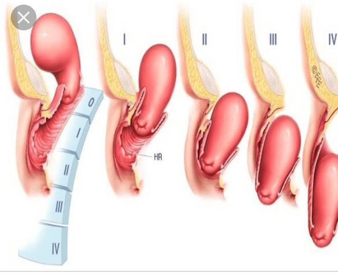 Выпадение матки после родов у женщин: причины появления, сопутствующие симптомы, лечение и профилактика + отзывы пациенток