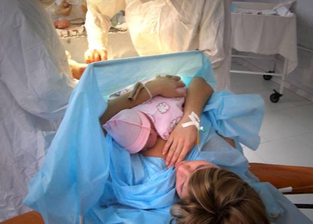 Плановое кесарево сечение: на каком сроке делают и как проходит, подготовка в роддоме, особенности при повторном кесареве и при вторых родах