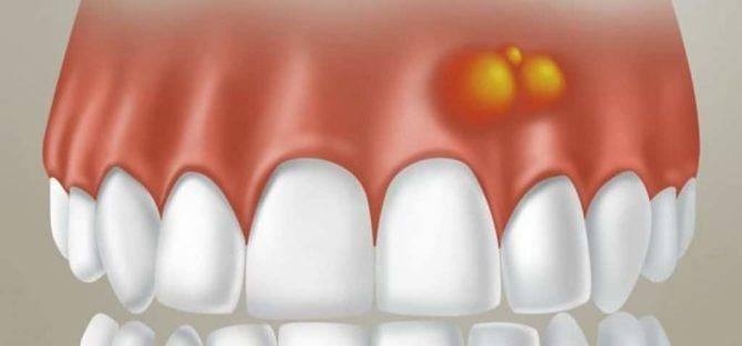 Шишка на десне над зубом у ребенка: срочно, что делать, как лечить