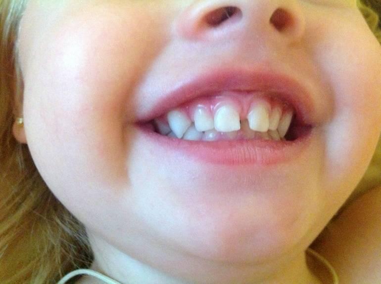 Как происходит подрезание уздечки под языком у детей?