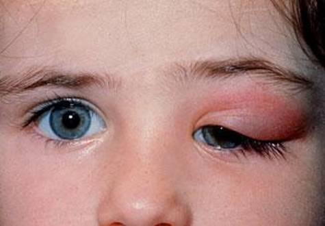 Воспалился глаз у ребенка - что делать и как лечить в домашних условиях?