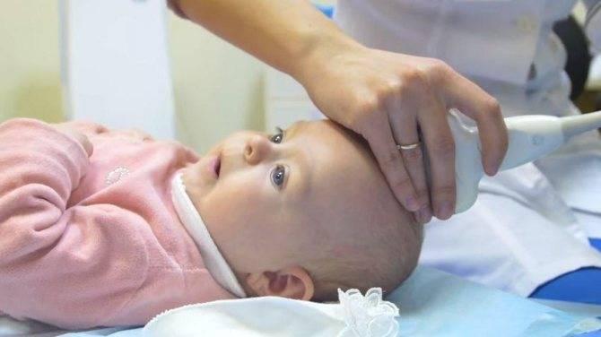 Псевдокиста головного мозга у новорожденных комаровский - wikifirstvrash.ru