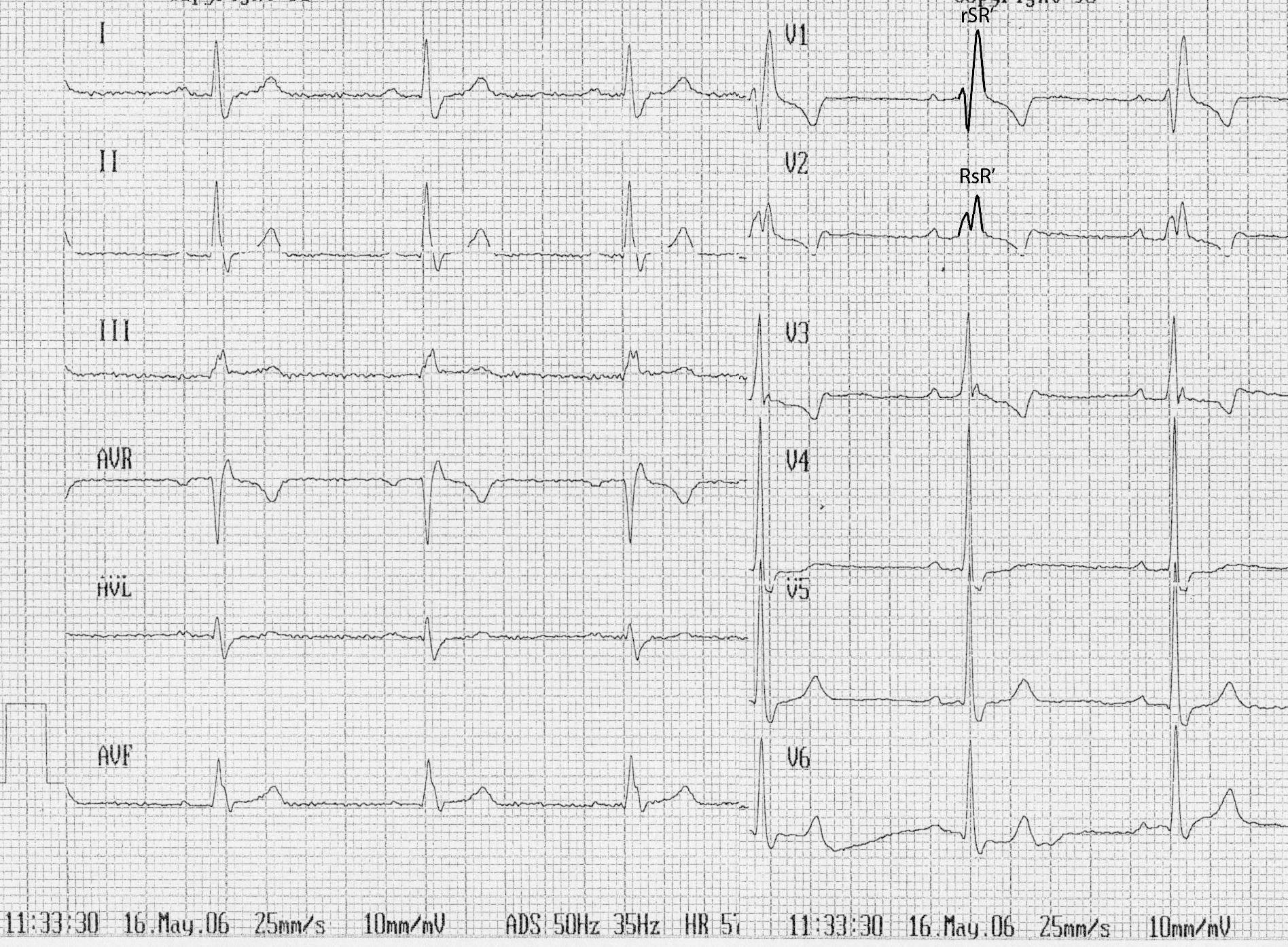 Блокады ножек пучка гиса и другие нарушения внутрижелудочковой проводимости сердца