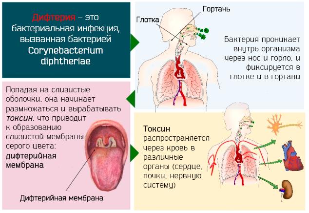 Дифтерия у детей: симптомы и лечение, профилактика, фото зева и гортани