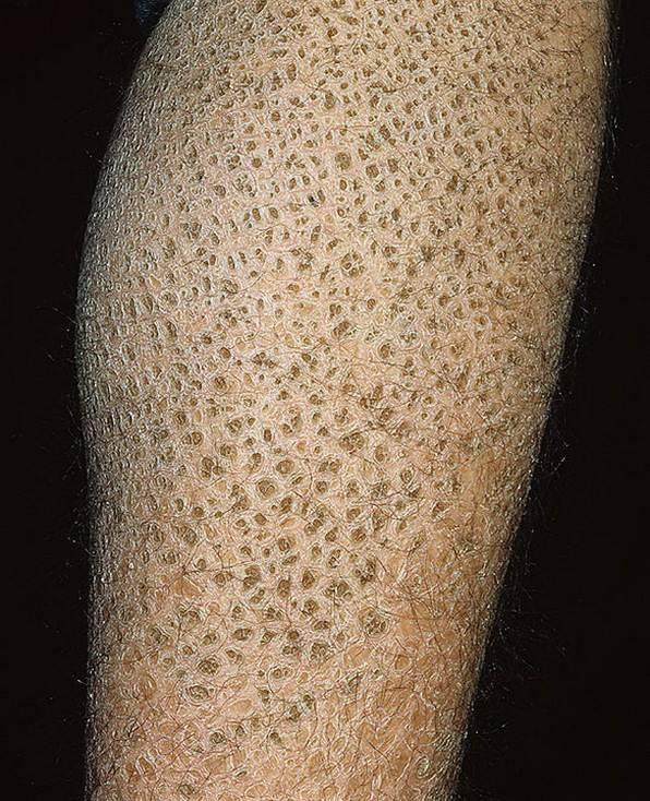 Ихтиоз кожи у детей: опасно ли это заболевание для новорожденных, что делать и как лечить?