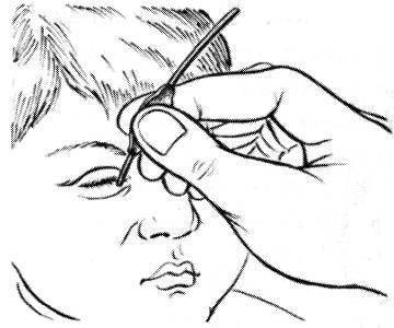 Массаж как неотъемлемая часть лечения дакриоцистита у новорожденных