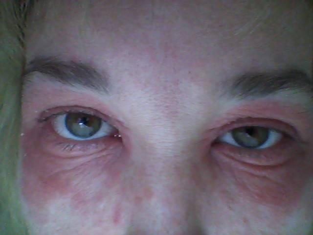 Аллергия - отекают глаза у ребенка: лечение и фото, причины и таблетки