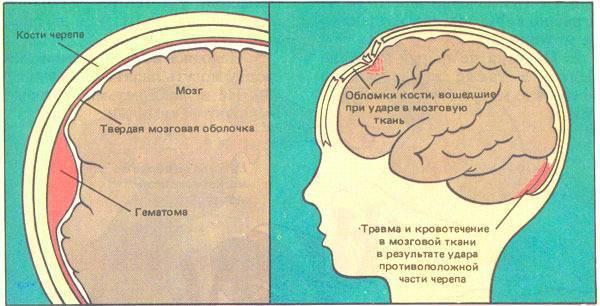 Как лечить ушиб головы. болит голова после удара головой, что делать