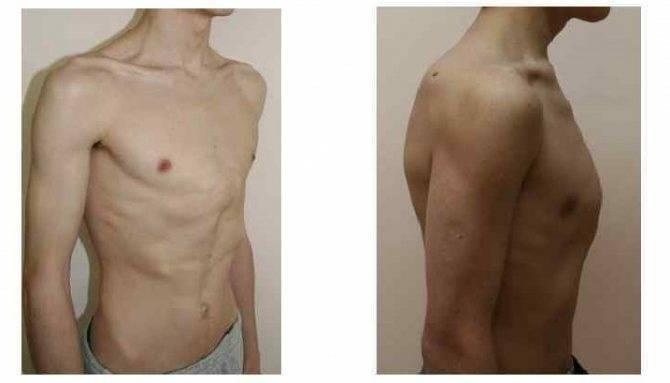 Деформация грудной клетки у ребенка: лечение килевидной, воронкообразной и других форм, фото, массаж