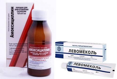 Стрептодермия у детей: фото, симптомы и лечение