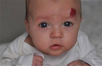 Гемангиома у новорожденных детей: причины возникновения и поводы для удаления