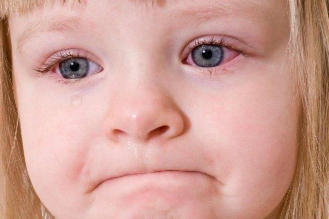 Воспаление глаза у ребенка: чем лечить, если воспалился, что делать, методы лечения