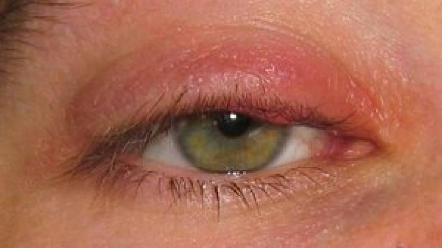 У ребёнка гноятся глаза: что делать, чем промывать и лечить глазик дома, возможные причины появления гноя
