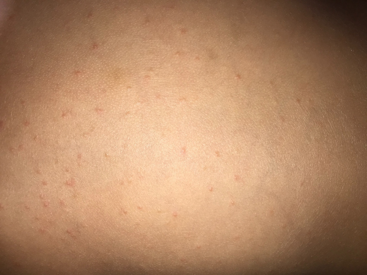 Сыпь на груди у ребенка: причины, фото, лечение