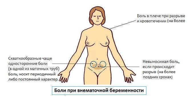Болит промежность при беременности — причина боли во влагалище