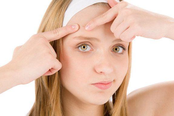 Лечение подростковых прыщей у девочек