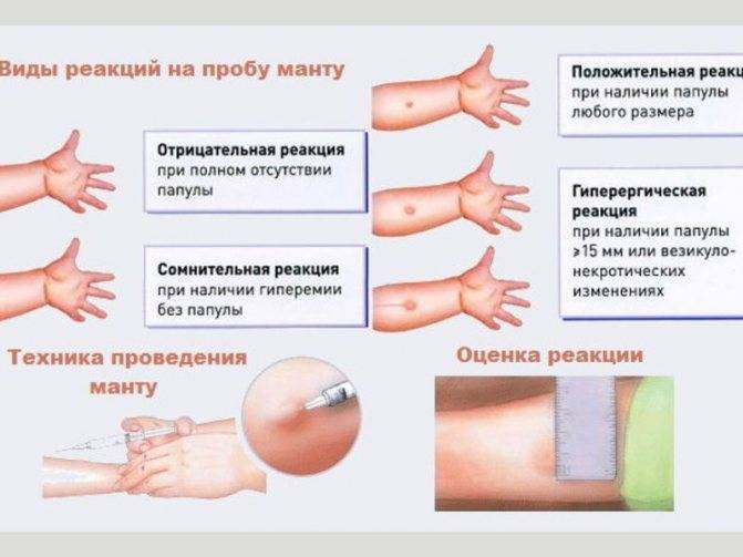 Может ли быть температура после манту и что делать, если ребенок заболел от прививки? | прививки | vpolozhenii.com