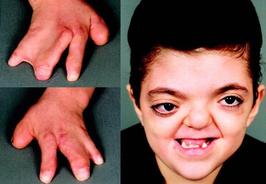 Болезнь нотта у детей: признаки, причины и лечение