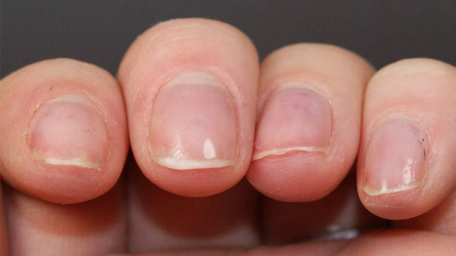 У ребенка слоятся ногти на ногах и на руках: советы комаровского