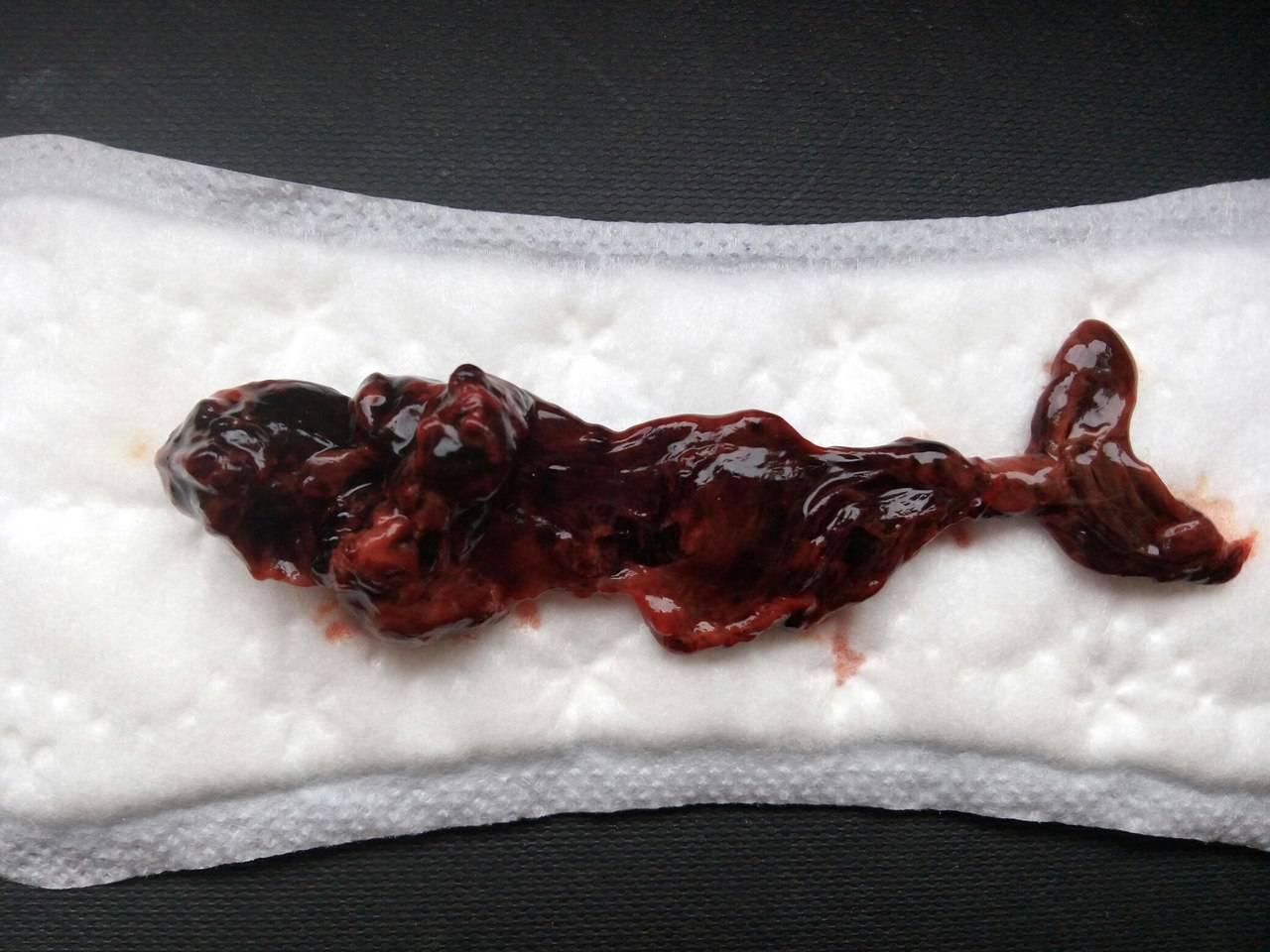 Как выходит плод при медикаментозном прерывании беременности