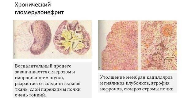 Гломерулонефрит у детей: общие характеристики, симптомы, лечение и прогноз
