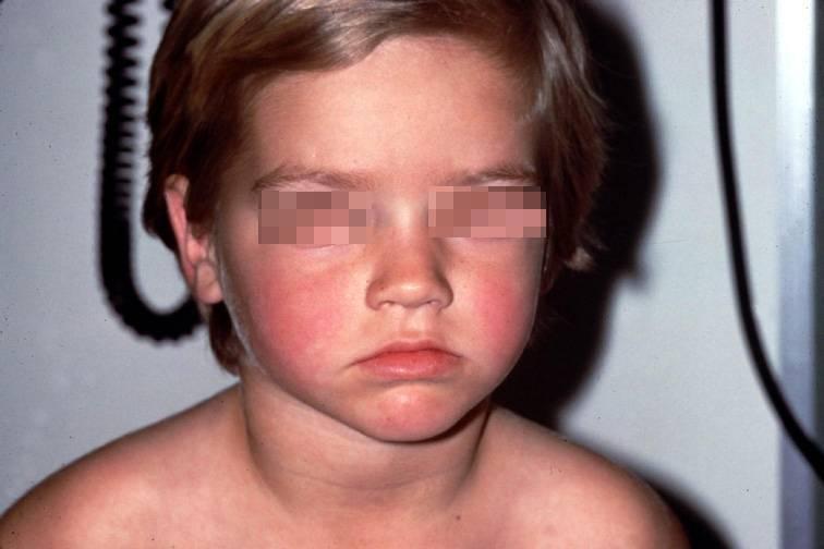 Инфекционная эритема у детей: что это такое и как выглядит на фото, какие симптомы и лечение?