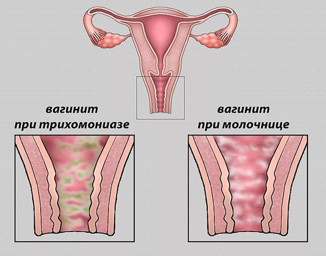 Вульвит у девочек: что это, симптомы и причины, лечение вульвита у ребенка в домашних условиях, мази