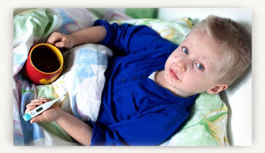 Корь у детей: симптомы и лечение, профилактика, фото сыпи в первые дни