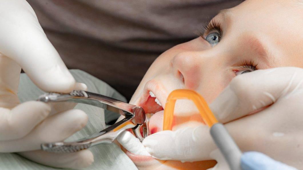 Как вырвать ребенку молочный зуб дома — зубы