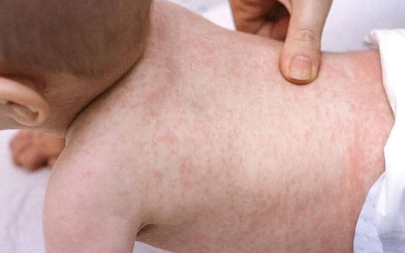 Высокая температура у ребенка до года: детская розеола или просто орви? розеола: сыпь и температура